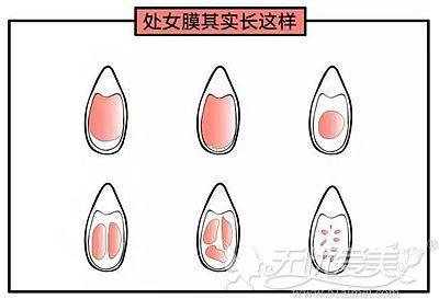 处女膜的不同形态