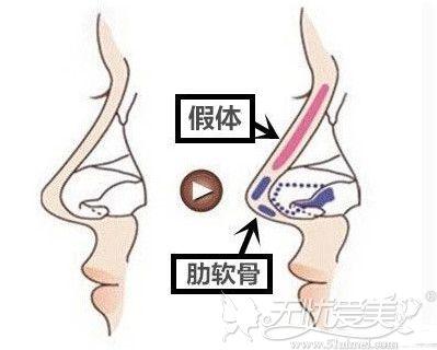 半肋骨隆鼻的手术部位