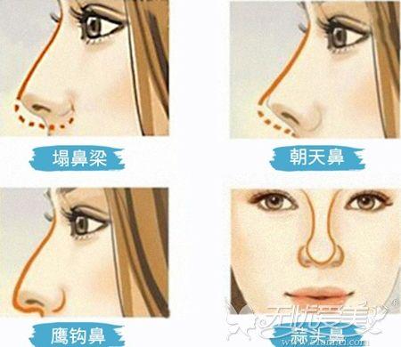 肋软骨隆鼻可以改善的鼻型