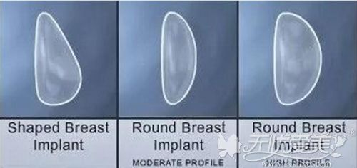 隆胸假体的各种形状