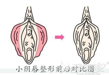 小阴唇缩小手术的效果