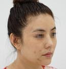 进行了三次鼻修复之后现在的鼻子效果我已经非常满意了术后
