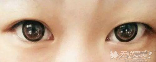 做的双眼皮为什么还会消失