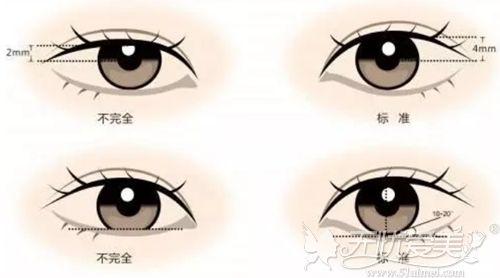好看的双眼皮线条