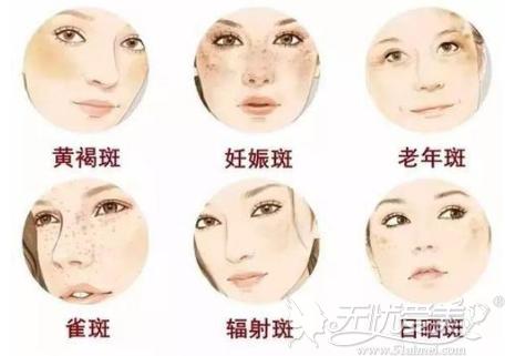蜂巢可以改善面部斑点类型