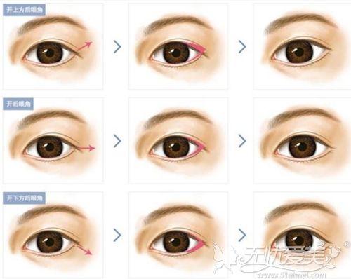 几种开眼角的手术方法