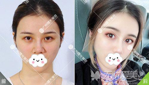 自体脂肪面部填充前后对比