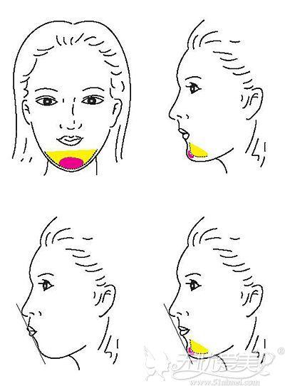硅胶垫下巴后是否会出现骨吸收