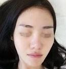 做了3次玻尿酸注射隆鼻感觉维持时间短还是选择做了鼻综合术前