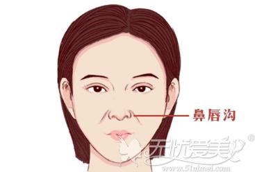 鼻唇沟的位置