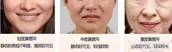 不同程度的鼻唇沟需要不同的方法治疗