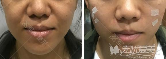 填充+埋线改善重度鼻唇沟