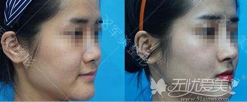 中重度鼻唇沟可以用注射+假体来改善