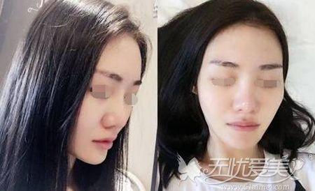 隆鼻手术前照片