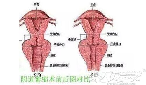阴道紧缩手术效果对比