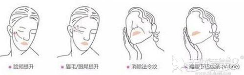 40岁以后做埋线提升可以改善面部轮廓