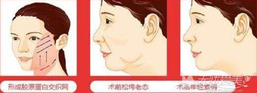 30-40岁做埋线提升可以改善面部下垂