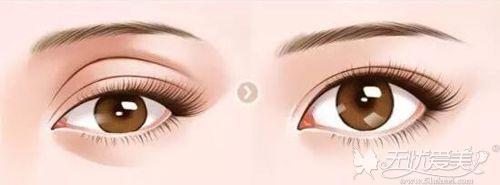 眼窝凹陷填充前后对比