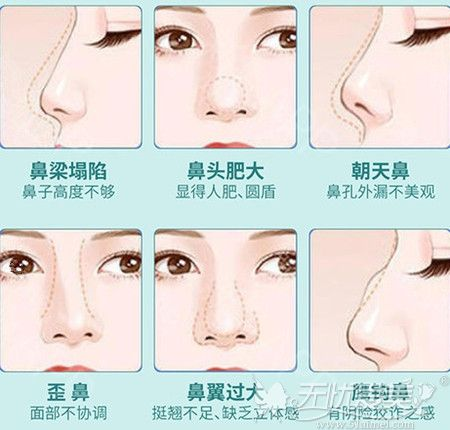 鼻梁塌陷鼻头大做鼻综合手术就可以一次改善