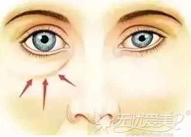 无论是先天型还是脂肪型眼袋都可以用内切法去除