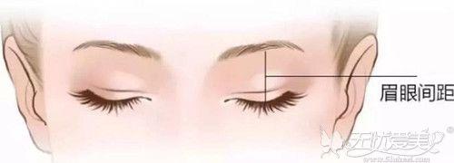 眉眼间距近适合做双眼皮手术吗?
