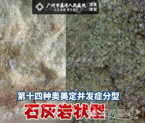 奥美定并发症的第14种分型--石灰岩状型被发现