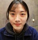 在韩国做的埋线双眼皮+提肌+前眼角没想到效果这么好术前