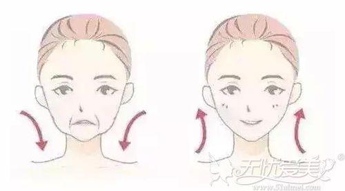 玻尿酸除皱前后对比