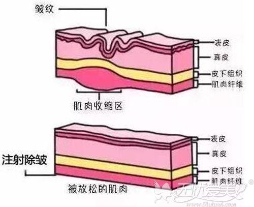 玻尿酸除皱的原理
