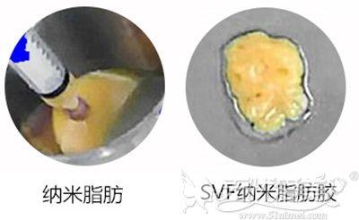 纳米脂肪和脂肪胶的区别