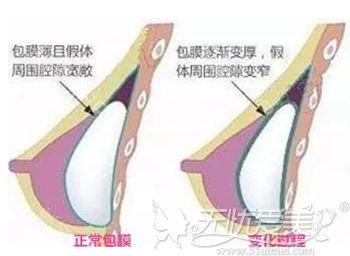 假体隆胸手术后包膜挛缩