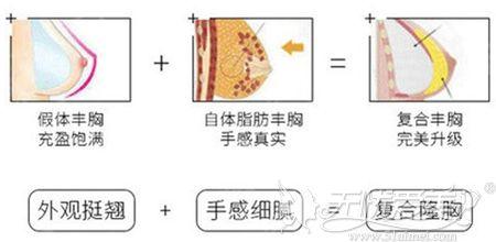 假体+脂肪复合丰胸手术