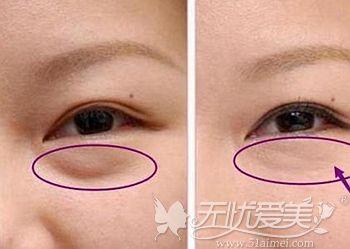 做外切去眼袋的过程和术后效果