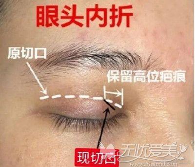 双眼皮修复后出现眼角分叉的原因