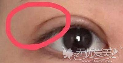 网上说双眼皮修复出现的分叉在消肿后会恢复 可信吗?