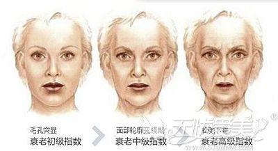 面部衰老的迹象体现
