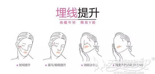 面部埋线提升的作用