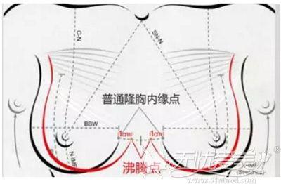 沸腾沟隆胸手术设计