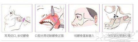 磨骨手术过程