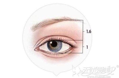 提眉手术后眉眼间距变近