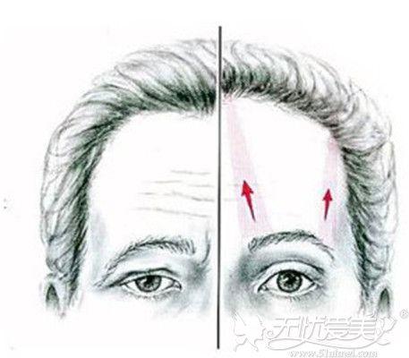 提眉手术可以改善眼部皮肤松弛下垂