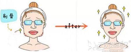 削骨一年后来说说避免下颌角手术十个做了九个会后悔忠告