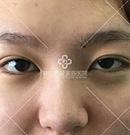 医生手一抖双眼皮失败还变的上睑下垂 但在这修复后笑开颜