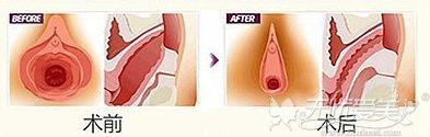 做完阴道紧缩手术后的改变