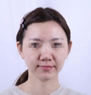 你在问郑州哪家医院隆鼻好的时候我就在这做了鼻综合