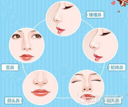 半肋骨隆鼻手术可以改善鼻型