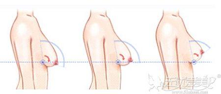 产后胸部缩水选择MVS魔力沟假体丰胸就能解决