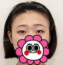小姐姐在重庆做双眼皮+开内眼角手术一个月的蜕变过程
