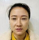 在郑州做了埋线提升之后改善我下垂的苹果肌和法令纹
