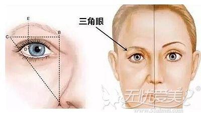 眉毛下垂、眼皮松弛可以做提眉手术